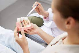 dental implants service in lahore